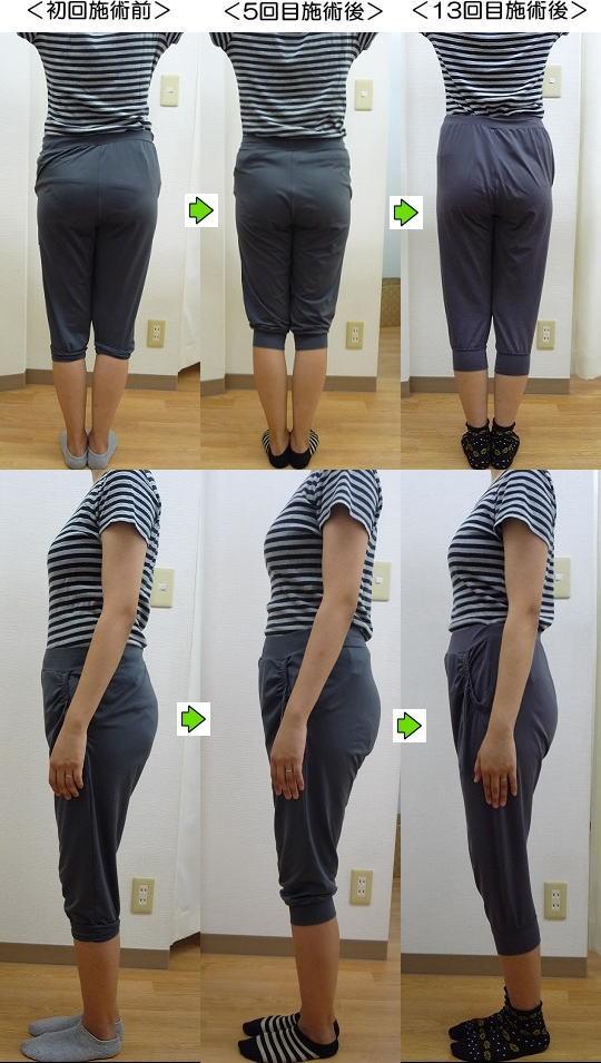 産後の骨盤矯正ビフォーアフターモデル3