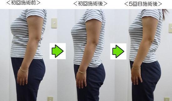 産後の骨盤矯正ビフォーアフターモデル4