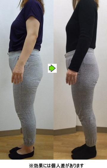 明石 朝霧整体院 産後の骨盤矯正 産後太り施術例2