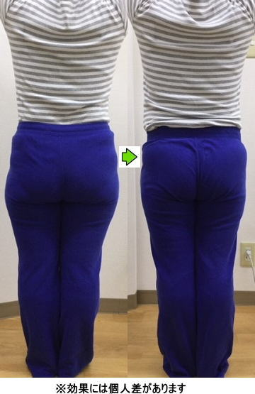 明石 朝霧整体院 産後の骨盤矯正 産後太り施術例1